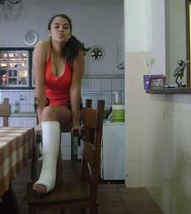 MTkwODgyMjI0LmpwZw (chilltown1) Tags: toes cast ankle