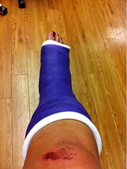 eDJfMzBhZGQ4NC5qcGc (chilltown1) Tags: toes cast ankle