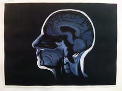MRI, Bipolar