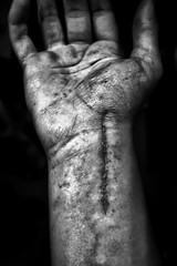 Scar (Jordan Moffat Photography) Tags: white black broken hospital scottish surgery doctor wrist had scar infected scaphoid blackwhitephotos
