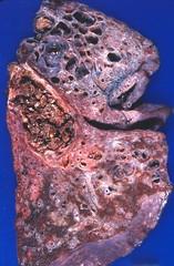 Aspergilloma complicating sarcoidosis (Pulmonary Pathology) Tags: gross honeycomb specimen pathology lung fibrosis macroscopic aspergillus bronchiectasis sarcoidosis saccular aspergilloma