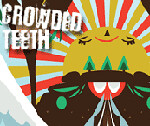 crowded-teeth