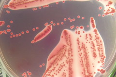 Escherichia coli in Hynes (mod.) agar (Uka wonderland) Tags: plate micro laboratory microbiology petri hynes colonies coli ecoli agar escherichia