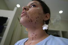 Trote violento: garota queimada com ácido