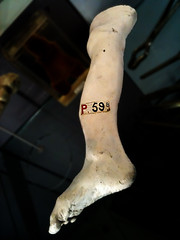 P.59b (Nad) Tags: foot toes label leg plaster cast ankle disease deformed clubfoot iphone p59b