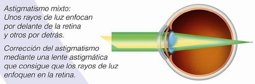 Astigmatismo mixto: unos rayos de luz enfocan por delante de la retino y otros por detrás