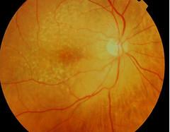 La edad provoca que las células de la retina se vuelvan menos eficientes, empiezan a aparecer depósitos llamados drusas debajo de la retina que pueden ser detectados en la exploración rutinaria del fondo del ojo por el oftalmólogo, así como también mediante fotografías de la retina.