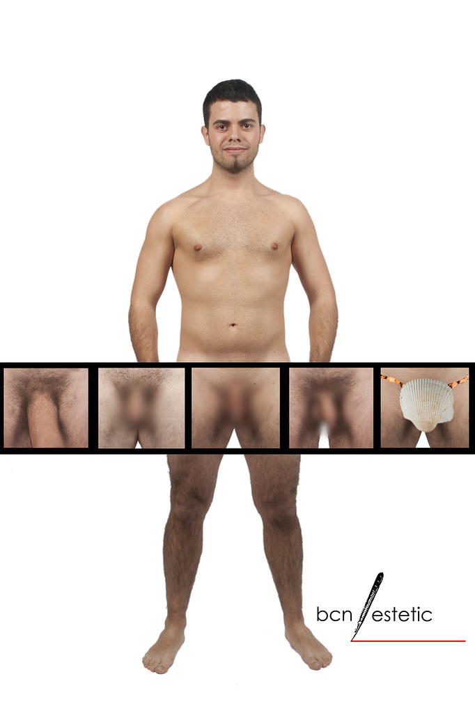 penis borros
