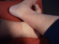 Anglų lietuvių žodynas. Žodis sunburn reiškia n 1) įdegimas; 2) nudegimas (nuo saulės) lietuviškai.