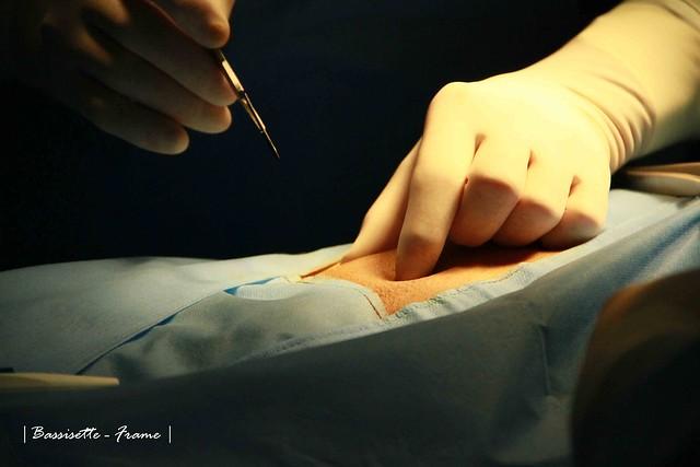 Hernia Surgery #10