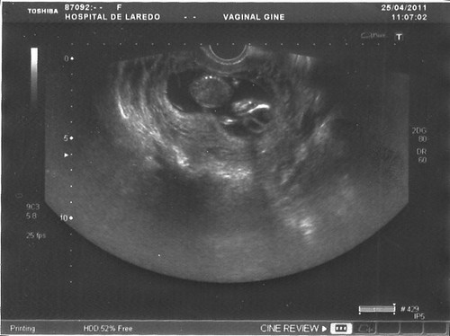 Offspring0002 Sonogram