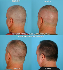 5680029998 260095f83e m FUE   Follicular Unit Extraction with NeoGraft
