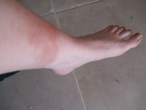 My poor swollen bruised ankle.  It's got worse since then too...EEKS!