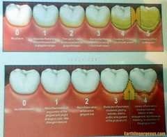 Teeth Condition Chart