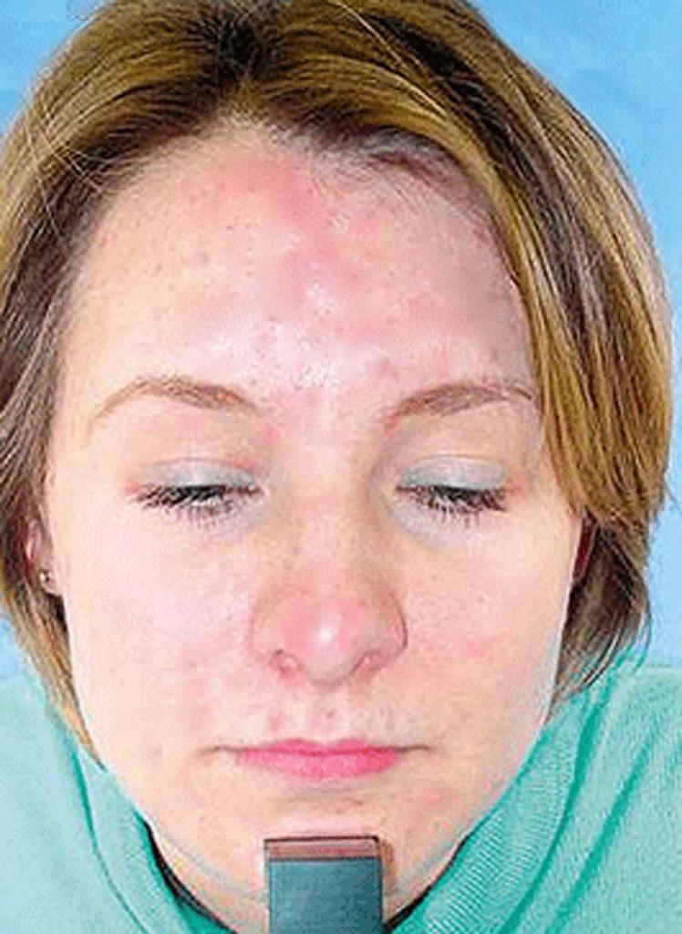 Vanishing Acne (changed)