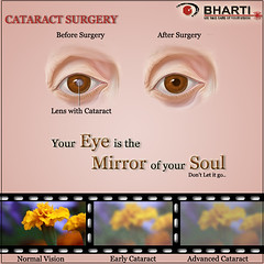 Cataract Surgery without Injection, Stitch & Bandages at Bharti Eye Foundation & Hospitals (bhartieye) Tags: cataract surgery phacocataract bharti eye care hospital