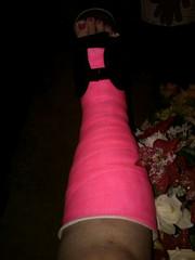 MjA0MjI3ODg0LmpwZw (chilltown1) Tags: toes cast ankle