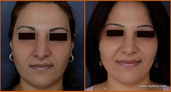Rhinoplasty (armen.vartany) Tags: effects nose la los closed breast open angeles dr board side free surgery plastic medical depression secondary job saline primary recovery nasal revision cosmetic enhancement silicone implant certified implants procedure surgeon reduction consultation rhinop