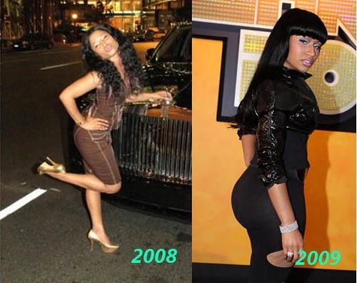 nicki minaj plastic surgery before. Nicki Minaj Booty Before and