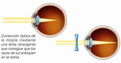 Corrección óptica de la miopía mediante una lente divergente que consigue que los rayos de luz enfoquen en la retina
