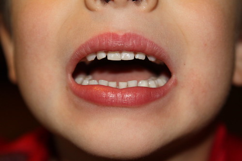 Close up of Ezra's soon to be not so full mouth of teeth