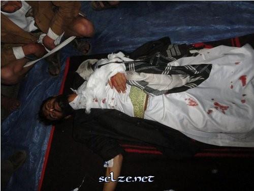 الى من اراد الحقيقه عن المظاهرات والقتل وكل ما يحدث في اليمن حالياً (الوجهه الحقيقي) 5511987566_617aece9a4
