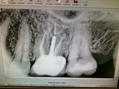 It's Root Canal Friday