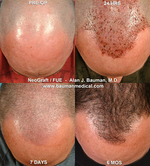 5680043146 eafdf85fa0 m FUE   Follicular Unit Extraction with NeoGraft