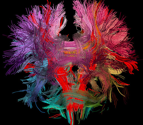 Neural Connections In the Human Brain