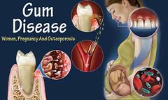 Gum Disease And Women, Pregnancy And Osteoporosis (IndependentInvestors) Tags: gumdisease periodontaldisease drymouthmouthwash periodontaldiseasesymptoms badbreath recedinggumstreatment