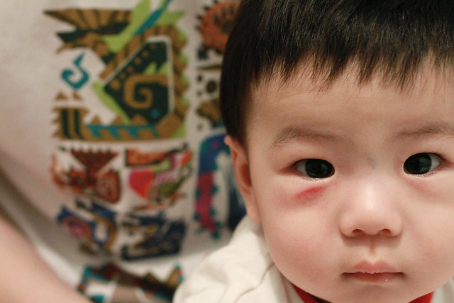 Baby Marcus hurt his face :(