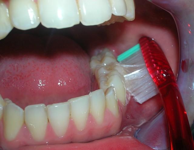 Zona molares inferiores vestibular