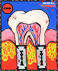 JUAN TOBARU - TOOTHACHE. (juan_tobaru) Tags: street sculpture music art film fashion illustration effects design pain mixed stencil graphics media grafitti graphic juan general interior web teeth flash paintings performing arts roots drawings textures photograph anatomy prints concept root product visual toothache vector painful indus matte acryllics tobaru ragework soundfxs