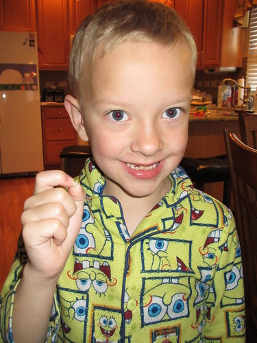 Josh lost his tooth!!