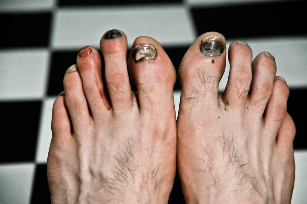 List of Synonyms and Antonyms of the Word: disgusting feet