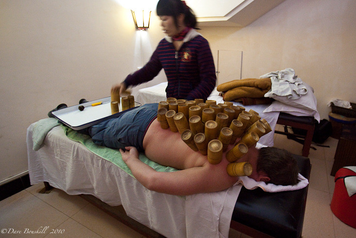 Dr Lilly Li Performing Hot Cupping in Yangshuo, China