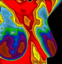 breast_thermography
