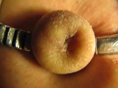 Outie 2 (bellybuttonlover20) Tags: cord belly button bellybutton navel umbilical inbetween innie ombligo outie flatie