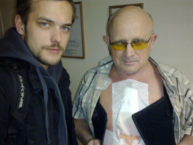 Alexander's heart surgery