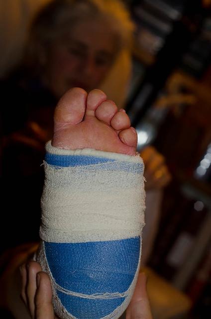 anne broken leg_4839.jpg