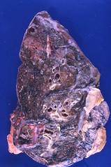 Aspergilloma (Pulmonary Pathology) Tags: gross specimen pathology lung macroscopic aspergillus aspergilloma