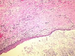 Aspergilloma (Pulmonary Pathology) Tags: microscopic specimen pathology lung aspergillus aspergilloma broncheictasis