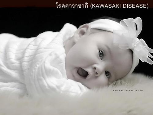 kavasaki disease