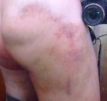 butt day12