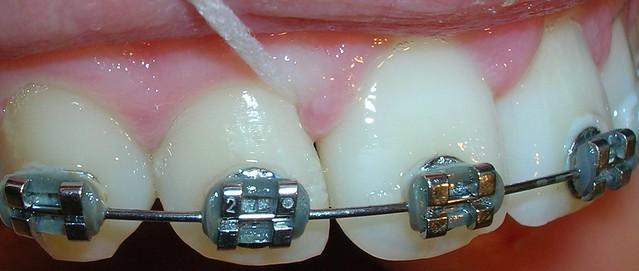 Cinta dental brackets