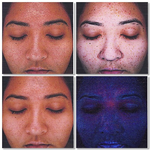 4/28/11 skin assessment