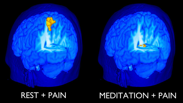 MRI Scans of Brain of Novice Meditator with Pain