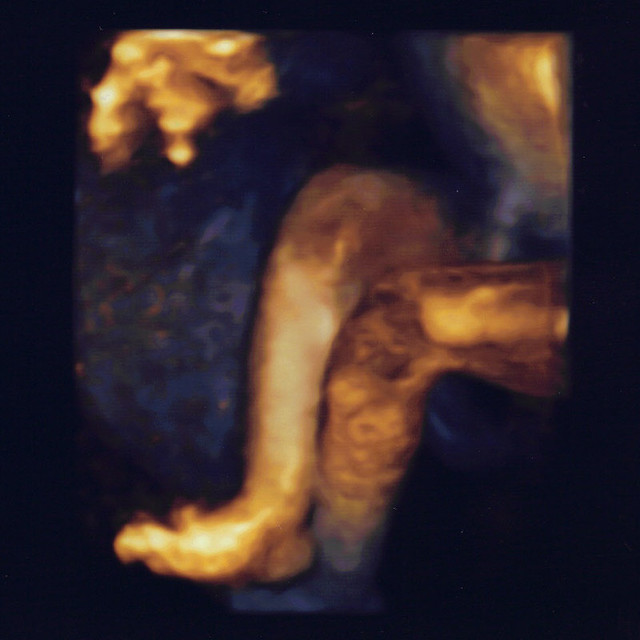 Anatomy Scan1crop