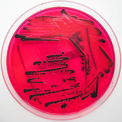 Salmonella species on X.L.D. agar.