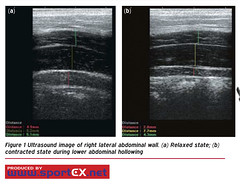 Ultrasound image of right lateral abdominal wall. (a) Relaxed state; (b) contracted state during lower abdominal hollowing (sportEX journals) Tags: medicine rehabilitation sportsmedicine sportex sportexmedicine medicinerehabilitationabdominals